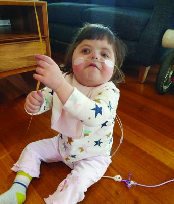 Three-year-old, Breana Zois was diagnosed with DiGeorge syndrome at birth Photo - supplied